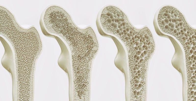 knochen-osteoporose-wechslejahre-knochendichte-frauen-xbyx-dxa-poroes