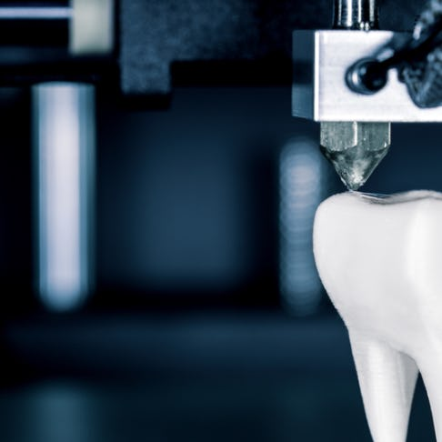 3d printed tooth