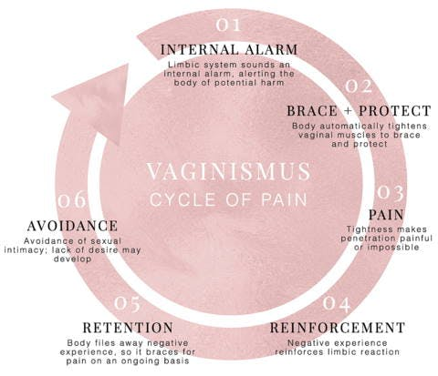 Cycle of Vaginismus Pain