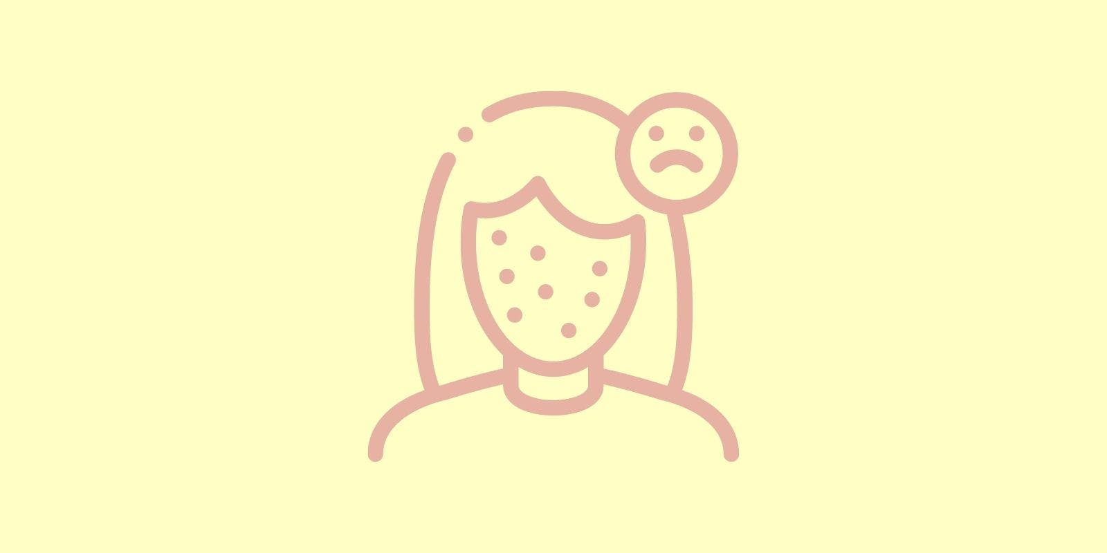 Everything To Know About Hormonal Cystic Acne